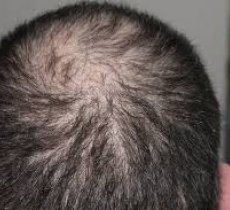 Health article about Find the most suitable hair transplant clinic in Turkey