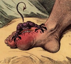 article about what is gout